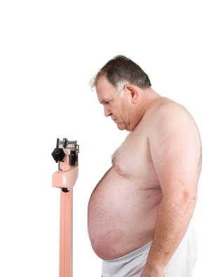 If Obesity Can Be Caught Can Hypnosis Help?