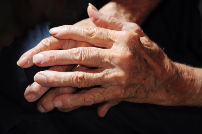 Hypnosis for Arthritis