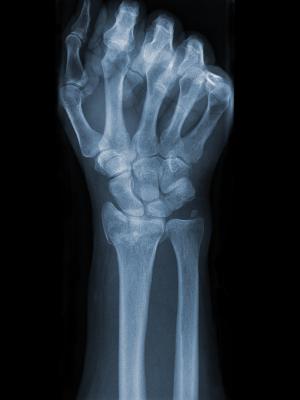 Bone Fractures Rise With Weight Loss Surgery