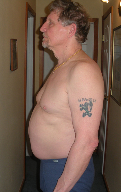 Terry Lost 45 Pounds and Dramatically Improved His Health