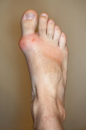 Foods to Avoid if You Want to Avoid Gout Attacks