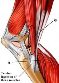 Knee pain hypnosis MP3 download