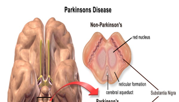 Clinical Hypnotherapy Case Studies Used To Alleviate Parkinson's Disease